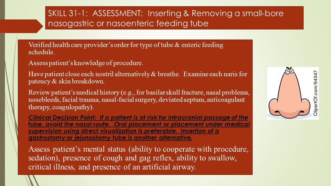 SKILL 31-1: ASSESSMENT: Inserting & Removing a small-bore nasogastric or nasoenteric feeding tube
