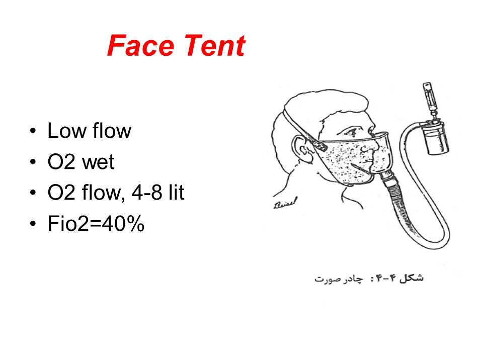 Face Tent Low flow O2 wet O2 flow, 4-8 lit Fio2=40%