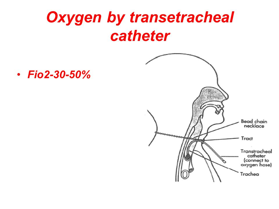 Oxygen by transetracheal catheter