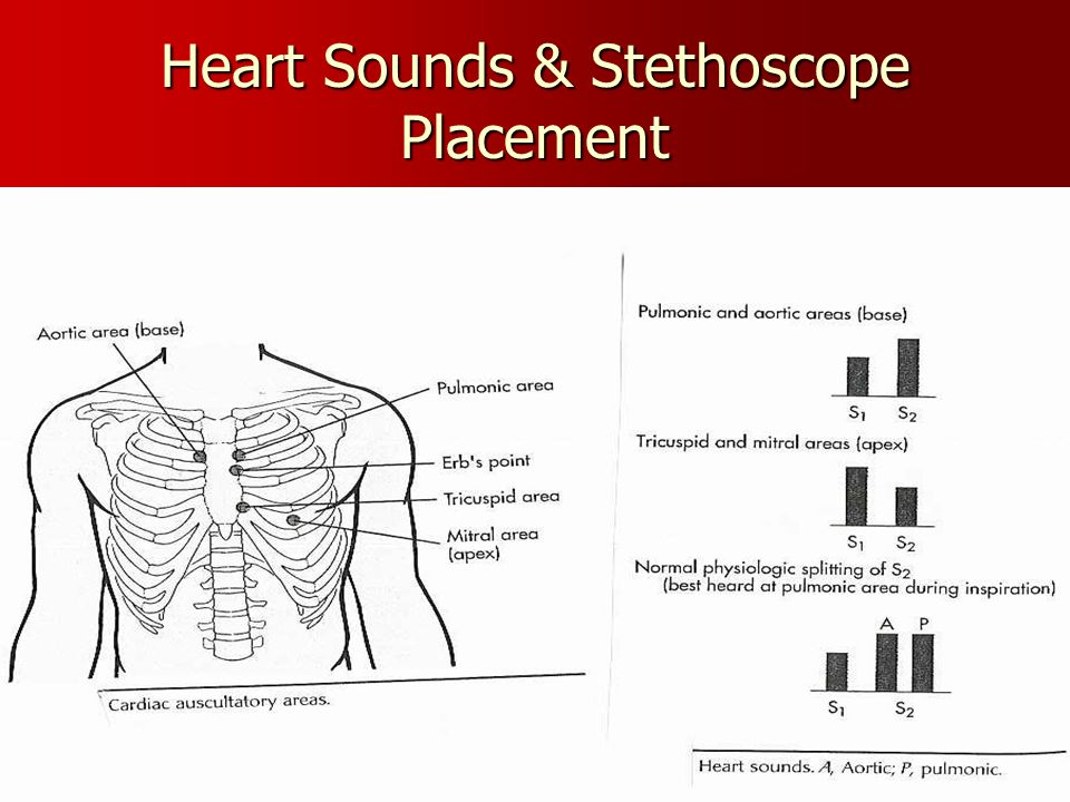 Heart Sounds & Stethoscope Placement