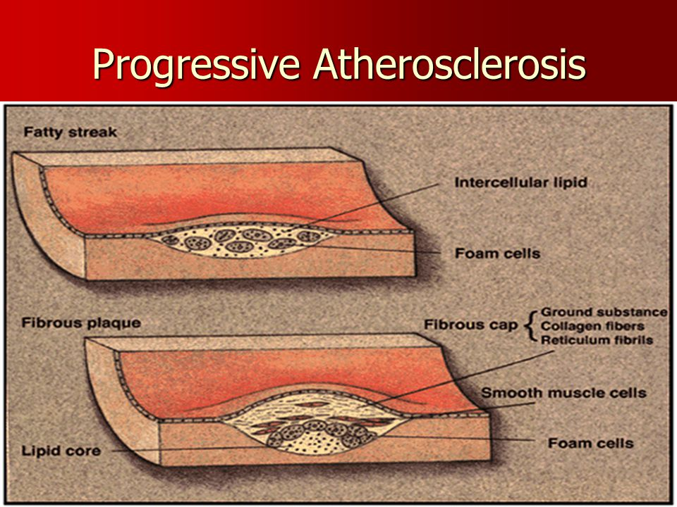 Progressive Atherosclerosis