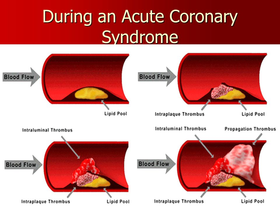 During an Acute Coronary Syndrome