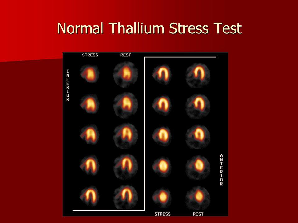 Normal Thallium Stress Test