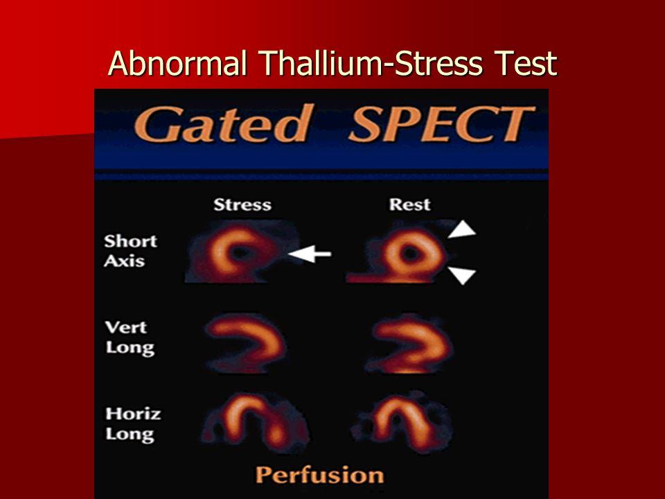 Abnormal Thallium-Stress Test