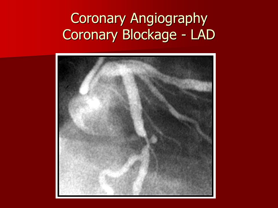 Coronary Angiography Coronary Blockage - LAD
