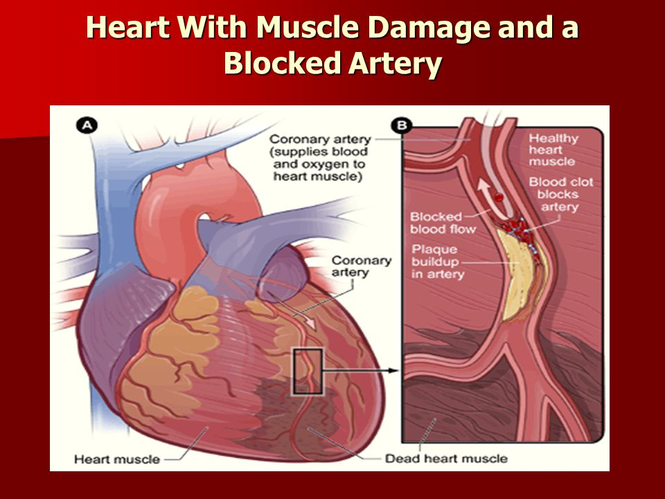 Heart With Muscle Damage and a Blocked Artery