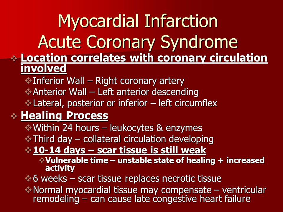 Myocardial Infarction Acute Coronary Syndrome