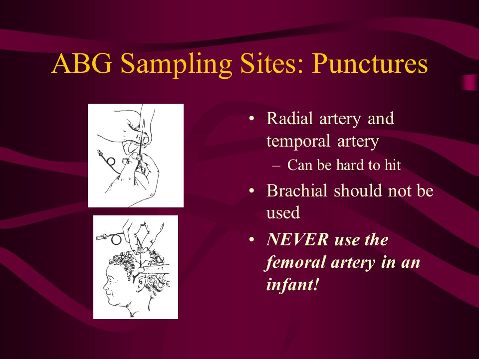 ABG Sampling Sites: Punctures