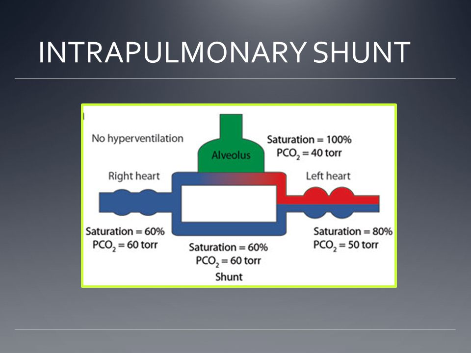INTRAPULMONARY SHUNT