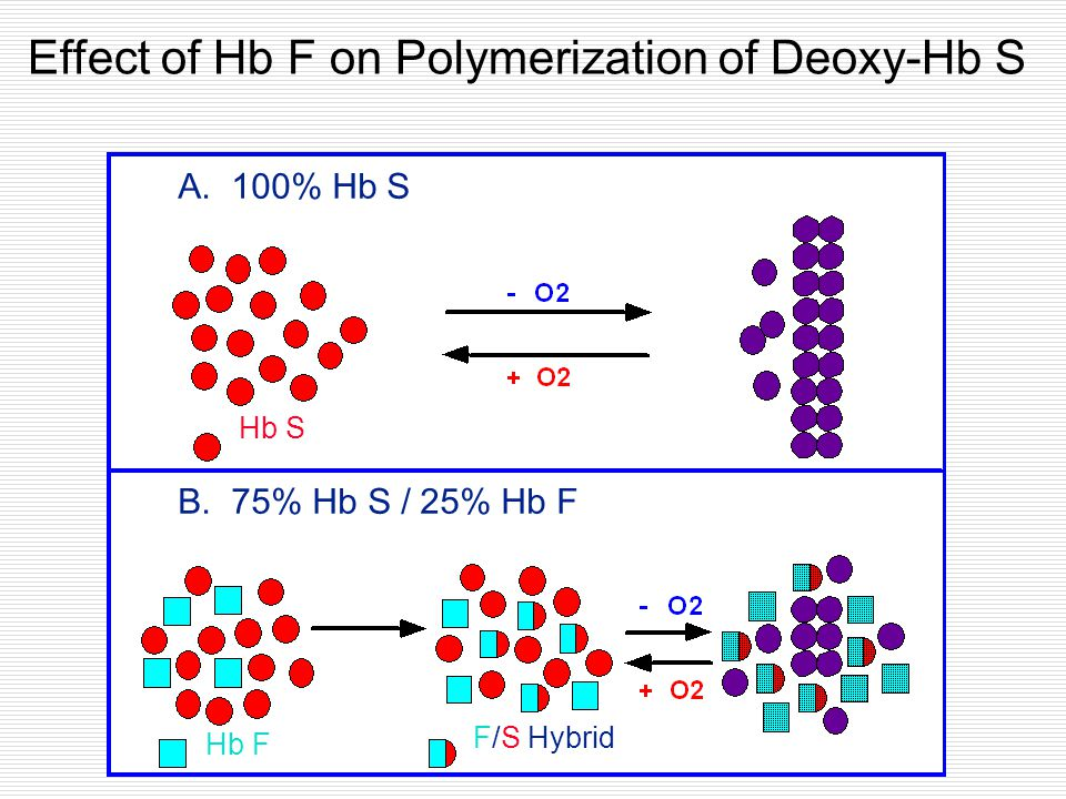 Effect of Hb F on Polymerization of Deoxy-Hb S