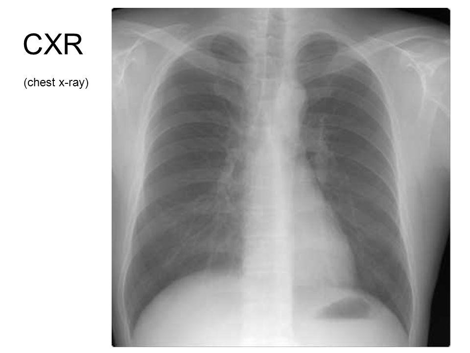 CXR (chest x-ray)