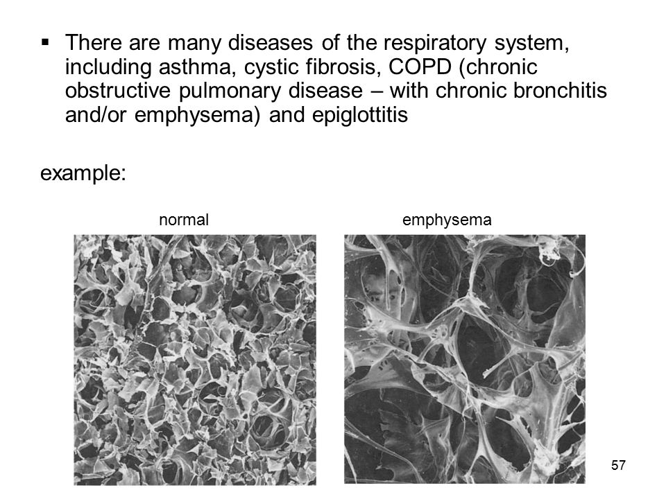 There are many diseases of the respiratory system, including asthma, cystic fibrosis, COPD (chronic obstructive pulmonary disease – with chronic bronchitis and/or emphysema) and epiglottitis