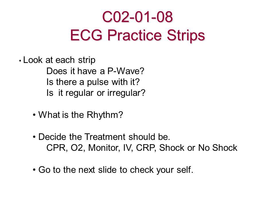 C02-01-08 ECG Practice Strips
