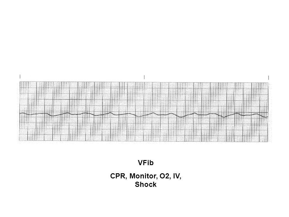 VFib CPR, Monitor, O2, IV, Shock