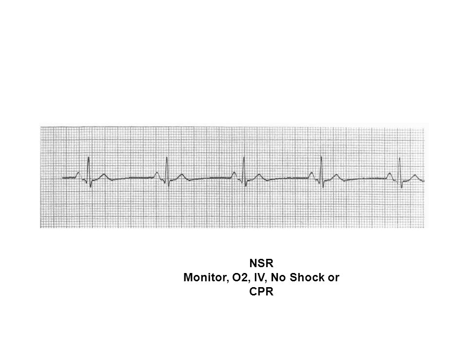 Monitor, O2, IV, No Shock or CPR