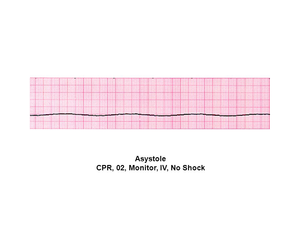 Asystole CPR, 02, Monitor, IV, No Shock