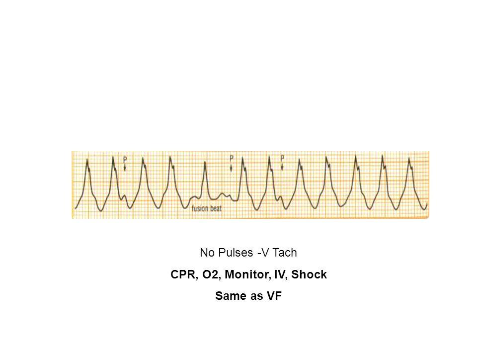 No Pulses -V Tach CPR, O2, Monitor, IV, Shock Same as VF