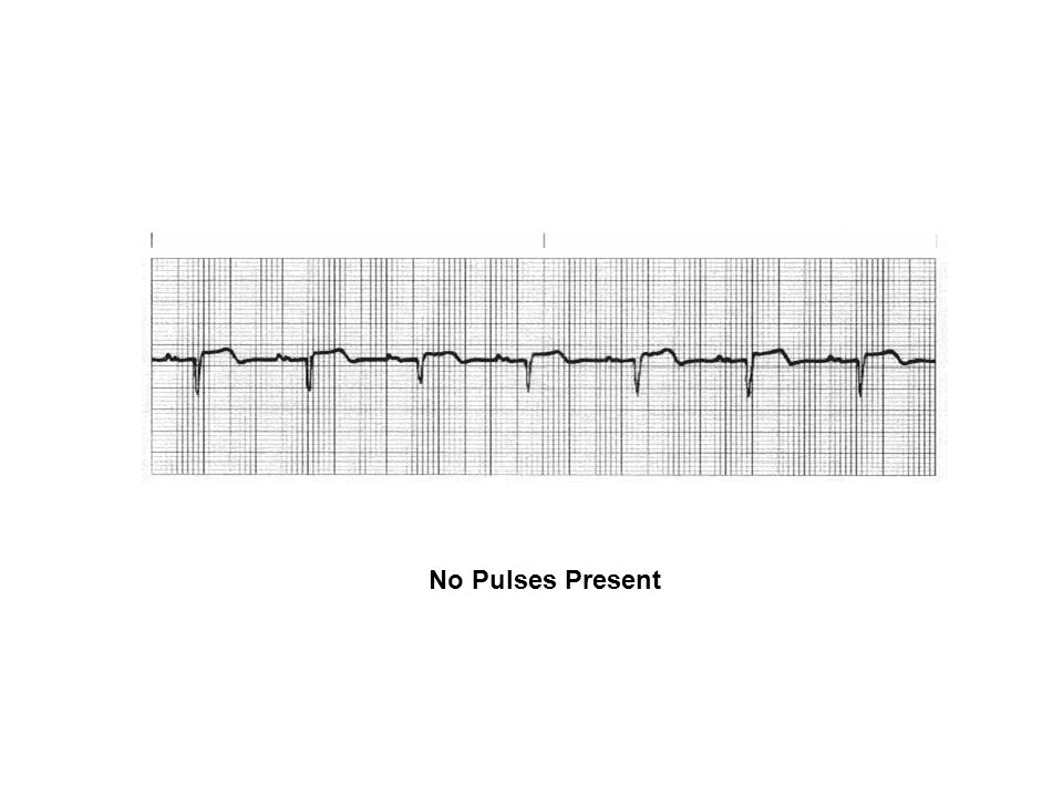 No Pulses Present