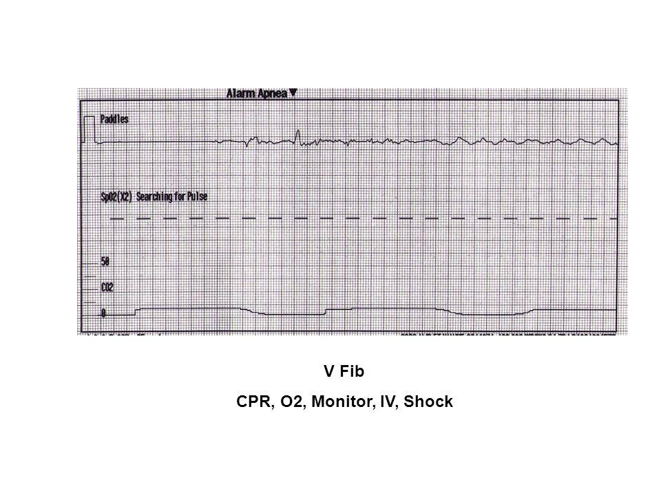 V Fib CPR, O2, Monitor, IV, Shock
