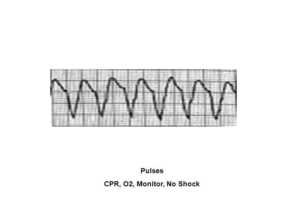 Pulses CPR, O2, Monitor, No Shock