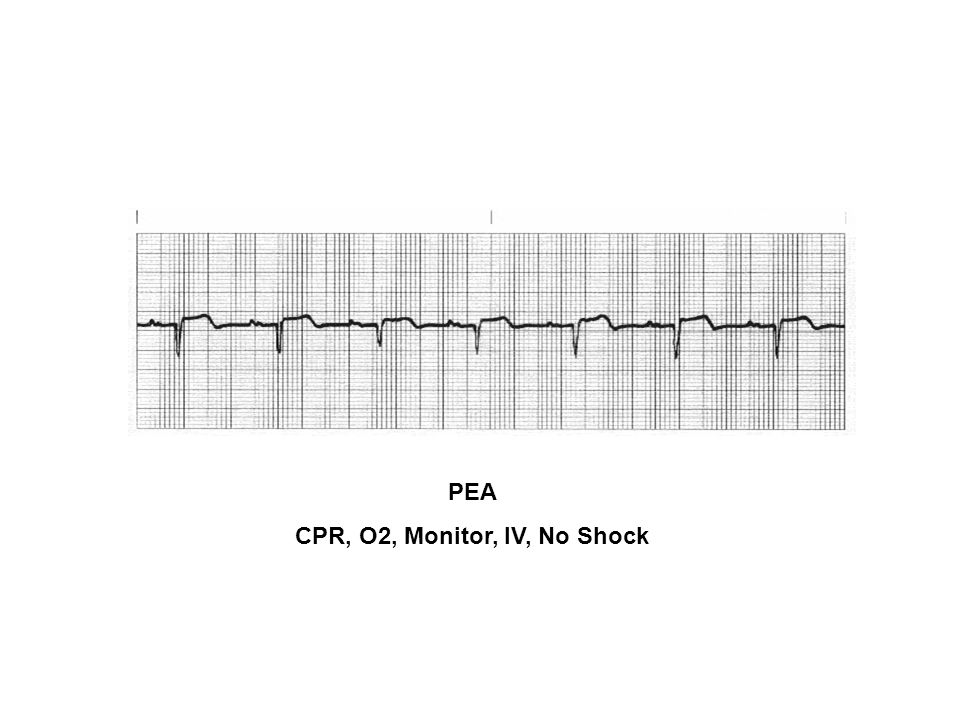 CPR, O2, Monitor, IV, No Shock