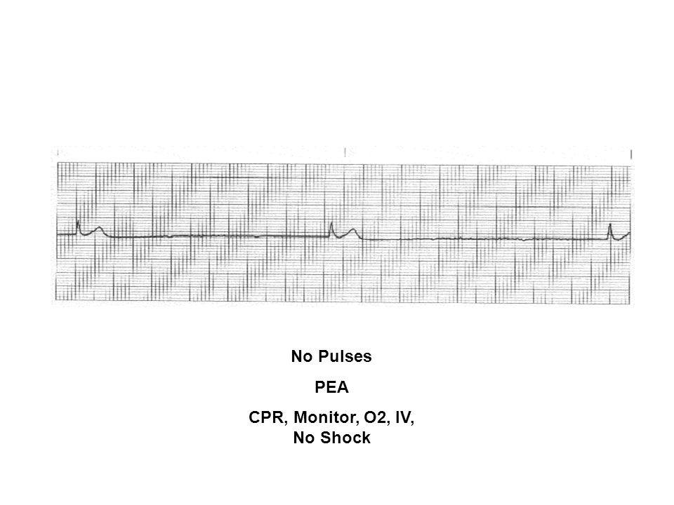 CPR, Monitor, O2, IV, No Shock