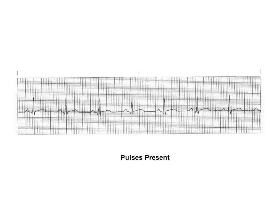 Pulses Present