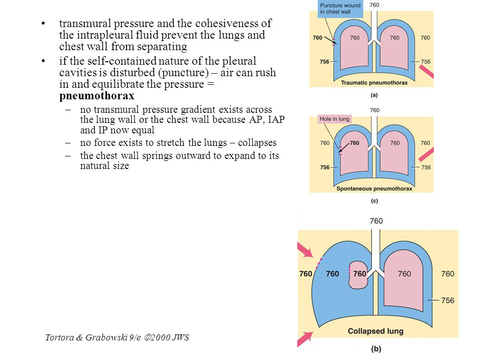transmural pressure and the cohesiveness of the intrapleural fluid prevent the lungs and chest wall from separating