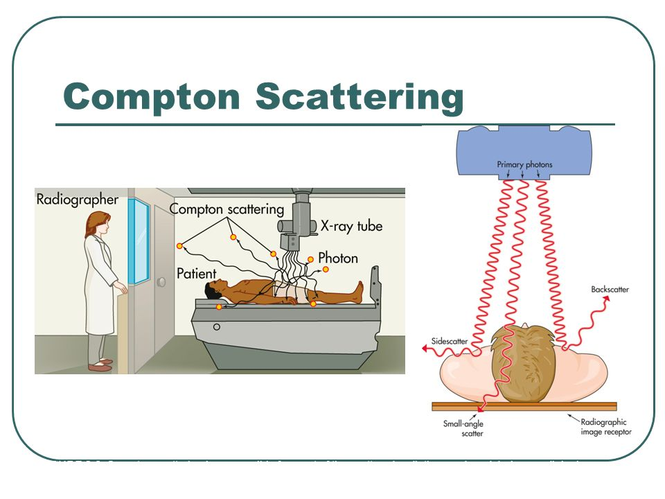 Compton Scattering PIC 1: Compton scattering is responsible for most of the scattered radiation produces during a radiologic procedure.