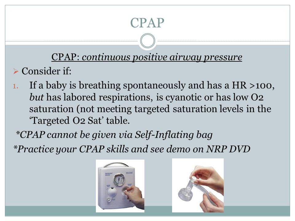 CPAP: continuous positive airway pressure
