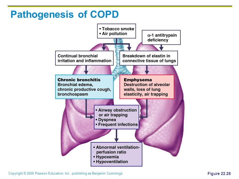 Pathogenesis of COPD Figure 22.28