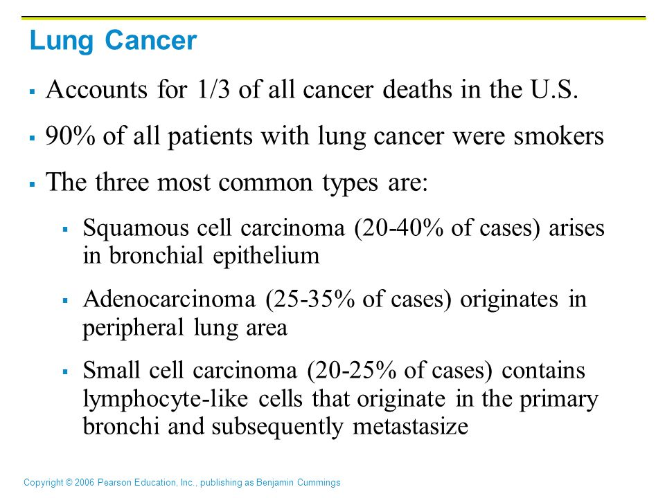 Accounts for 1/3 of all cancer deaths in the U.S.