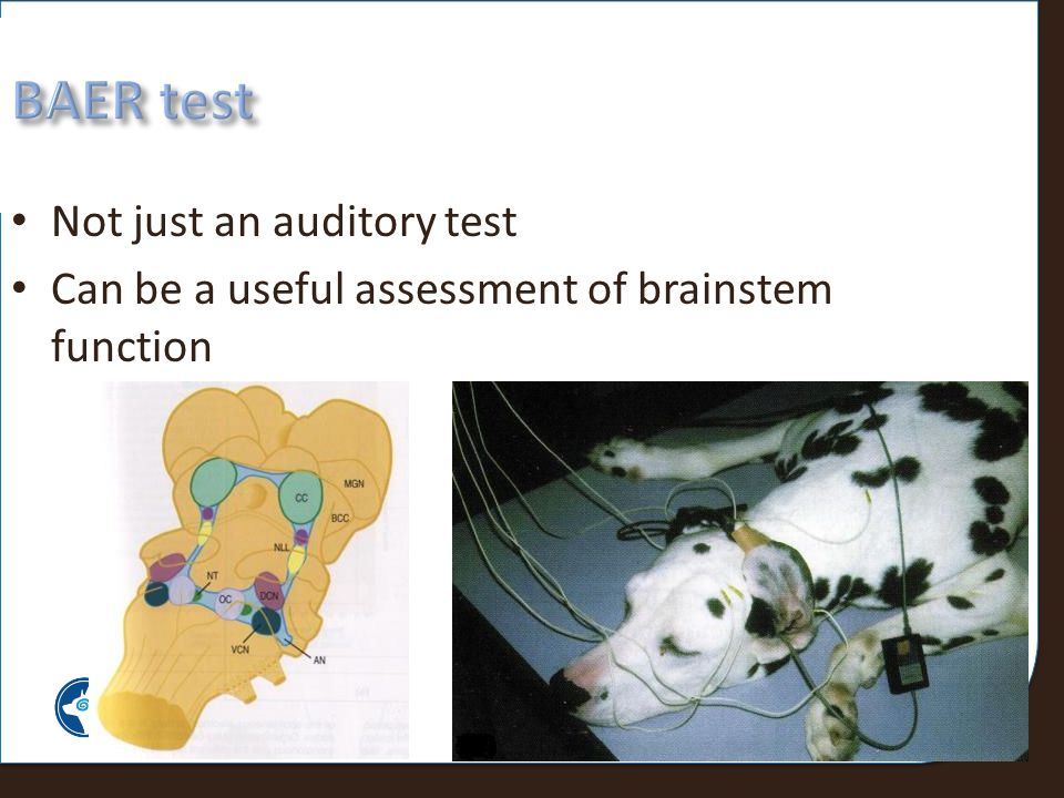 BAER test Not just an auditory test