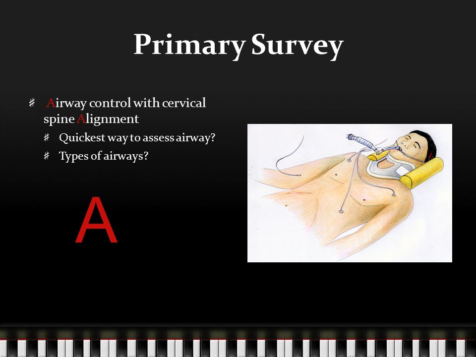 A Primary Survey Airway control with cervical spine Alignment