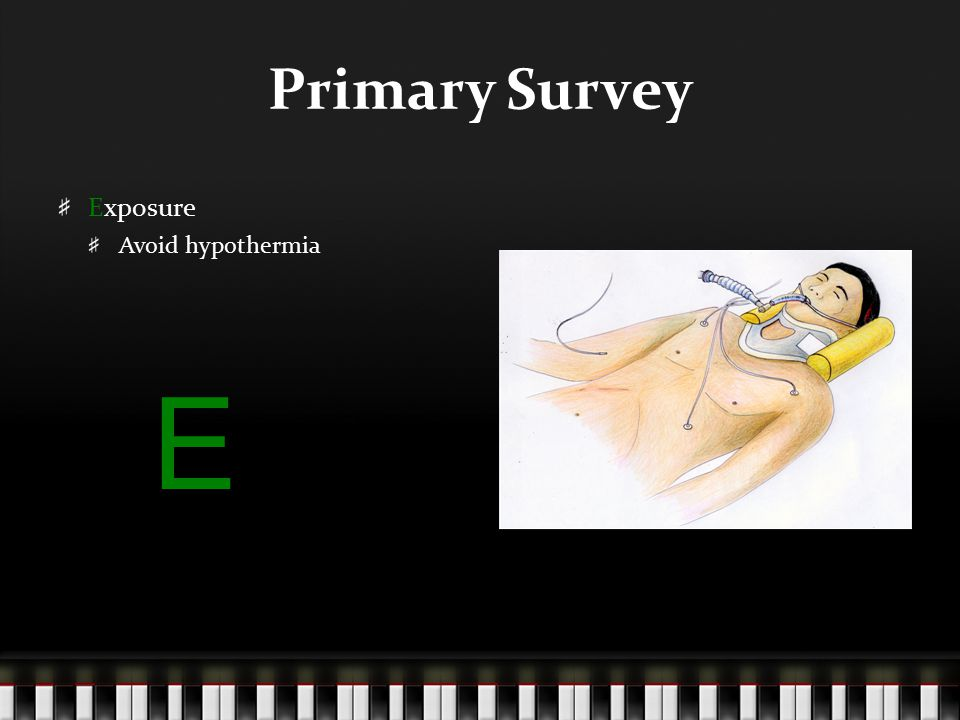 Primary Survey Exposure Avoid hypothermia E
