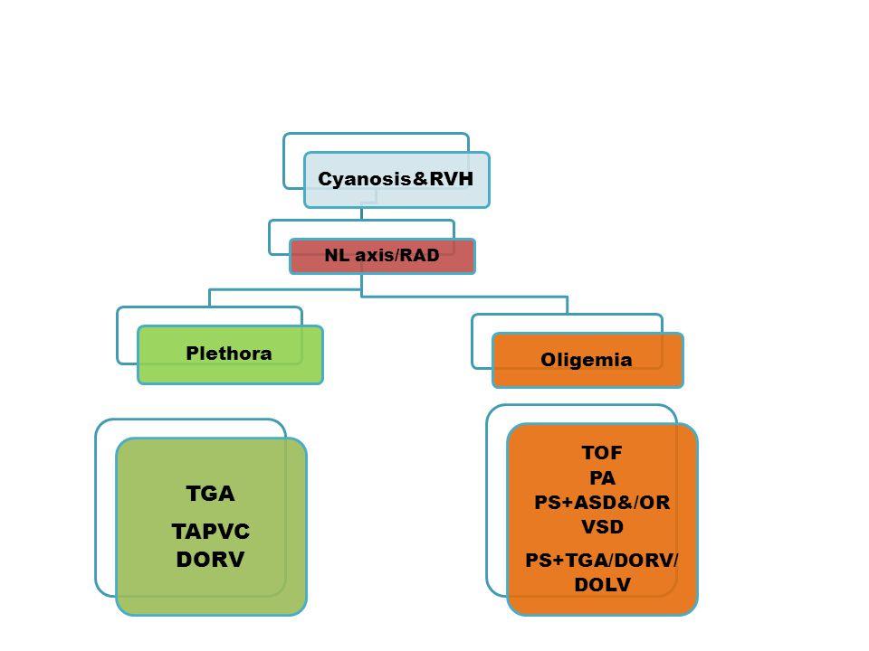 TGA TAPVC DORV Cyanosis&RVH Plethora Oligemia TOF PA PS+ASD&/OR VSD