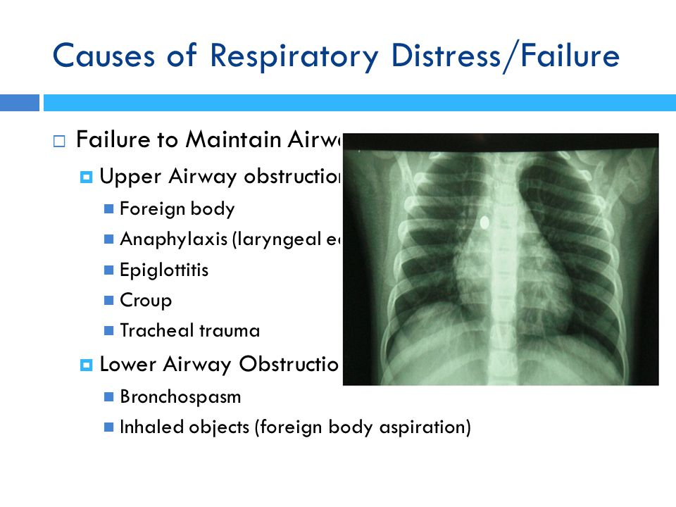 Causes of Respiratory Distress/Failure