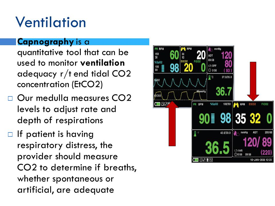 Ventilation Capnography is a quantitative tool that can be used to monitor ventilation adequacy r/t end tidal CO2 concentration (EtCO2)