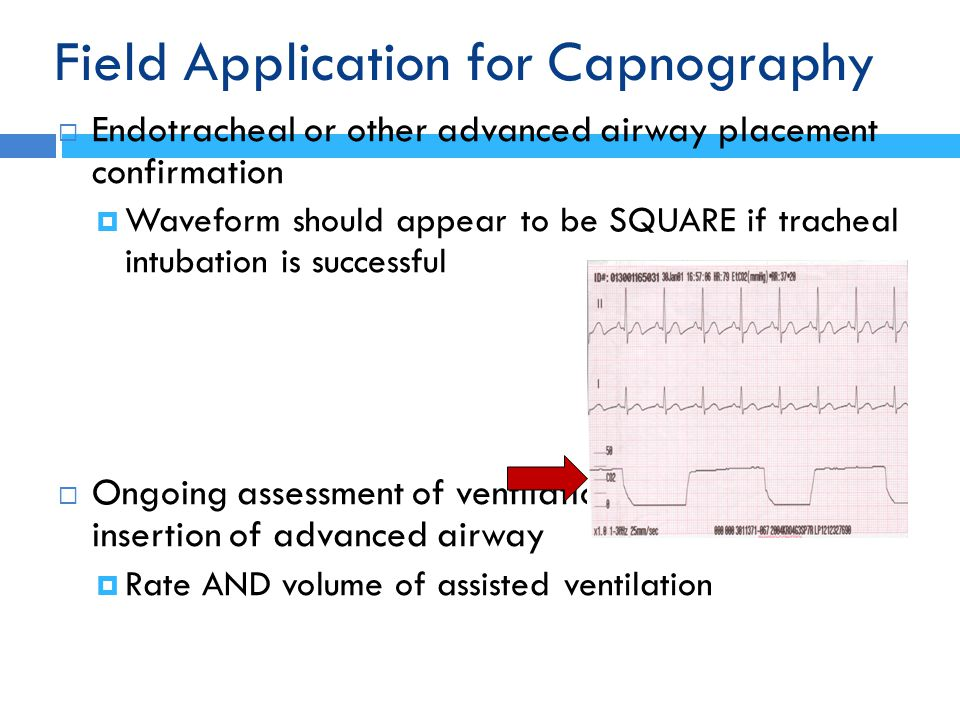 Field Application for Capnography
