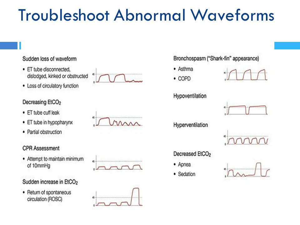 Troubleshoot Abnormal Waveforms