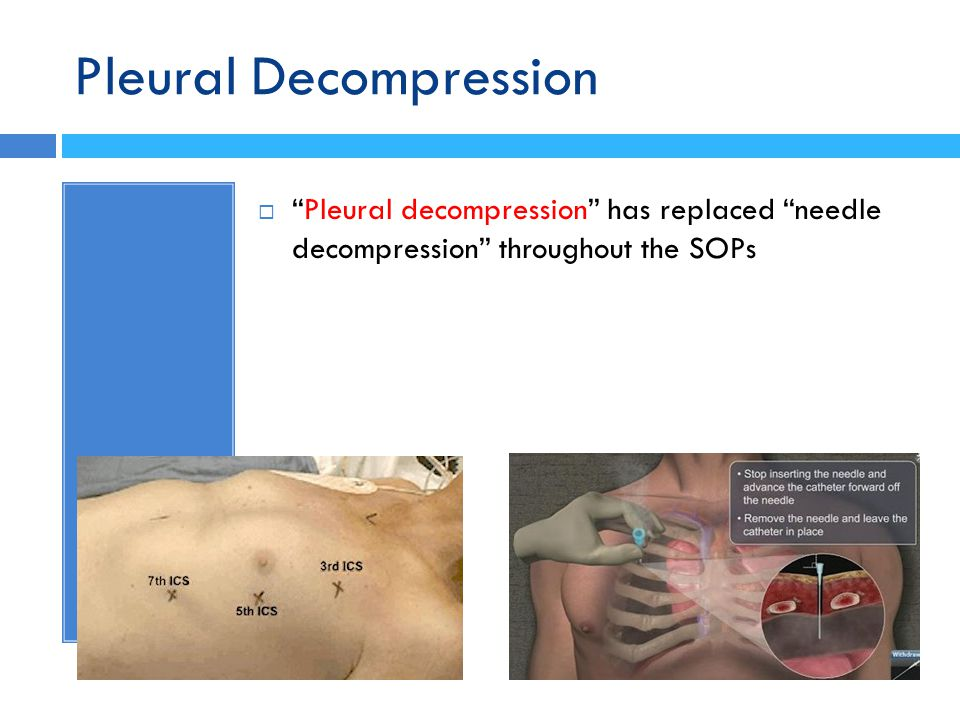 Pleural Decompression