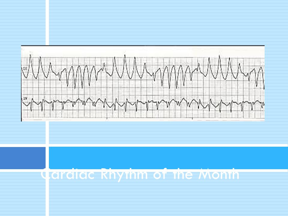 Cardiac Rhythm of the Month