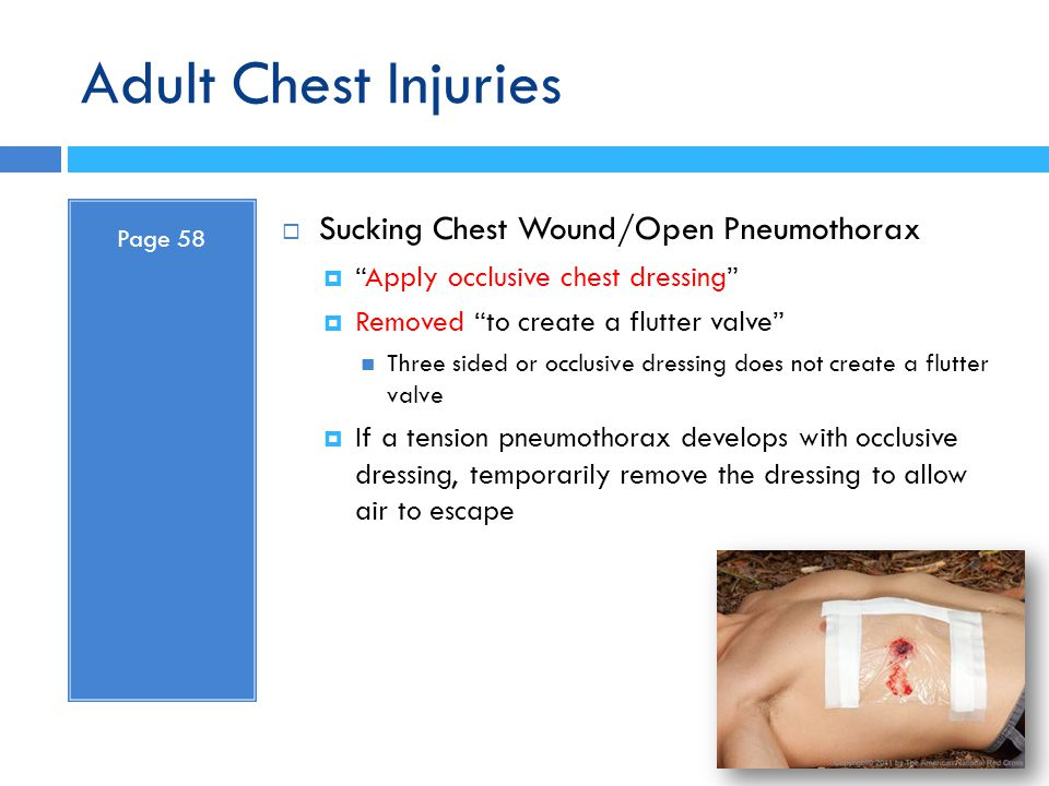 Adult Chest Injuries Sucking Chest Wound/Open Pneumothorax