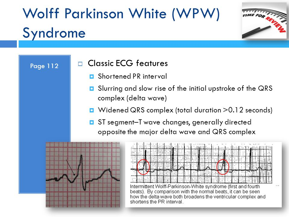 Wolff Parkinson White (WPW) Syndrome