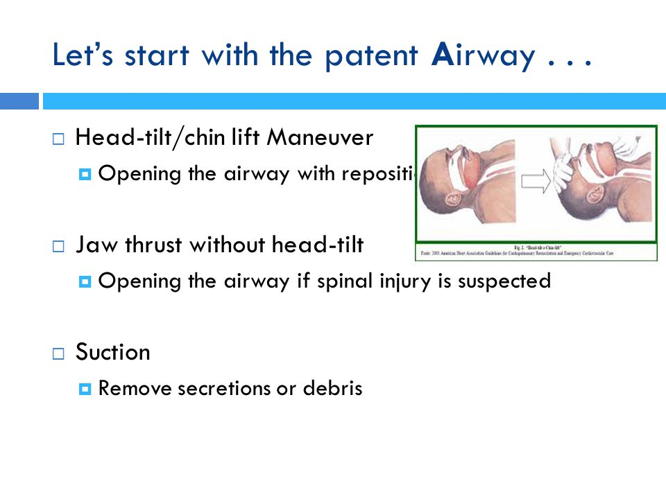 Let's start with the patent Airway . . .