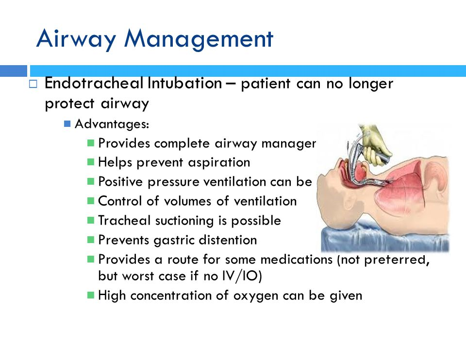 Airway Management Endotracheal Intubation – patient can no longer protect airway. Advantages: Provides complete airway management.