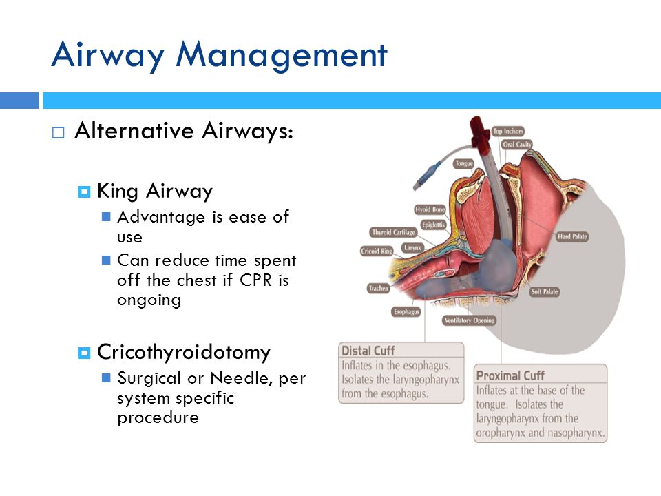 Airway Management Alternative Airways: King Airway Cricothyroidotomy