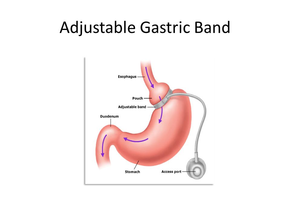 Adjustable Gastric Band
