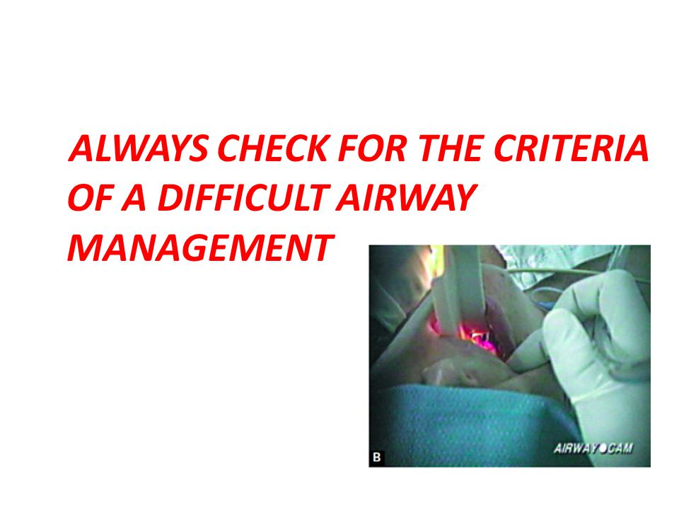 ALWAYS CHECK FOR THE CRITERIA OF A DIFFICULT AIRWAY MANAGEMENT