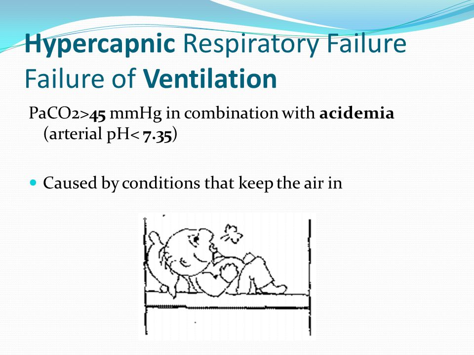 Hypercapnic Respiratory Failure Failure of Ventilation